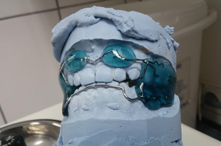 ortodonzia4